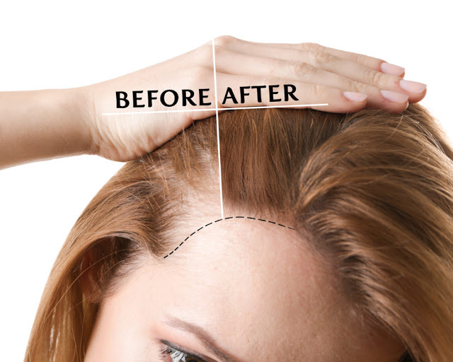 WHAT TO EXPECT:  HAIR TRANSPLANT SURGERY