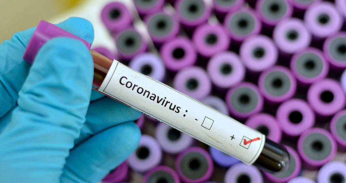 Scientists don't know if viral load is linked to severity of Coronavirus symptoms
