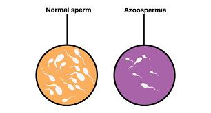 The infertility Talk – Azoospermia & its causes